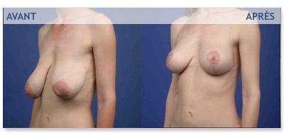 Chirurgie esth&ecute;tique des seins tombants