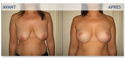 Photos avant - après rajeunissement des seins