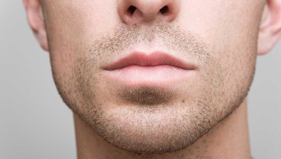 Jaw Reduction Using Botox