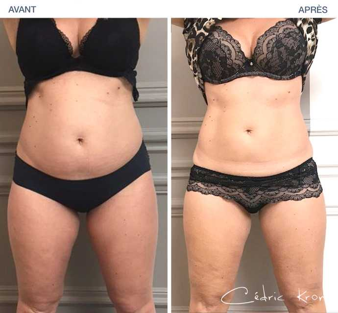 Résultat d'un amincissement du ventre par CoolSculpting en photo avant - après